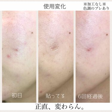 アクロパス素肌美人vita/アクロパス/その他スキンケアを使ったクチコミ(4枚目)