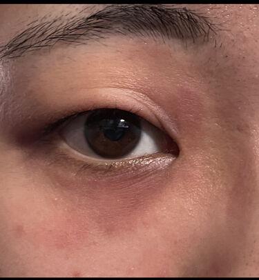 yuun on LIPS 「やっばい、死ぬほど顔面腫れた2枚目がいつもの目。3枚目が腫れた..」(3枚目)