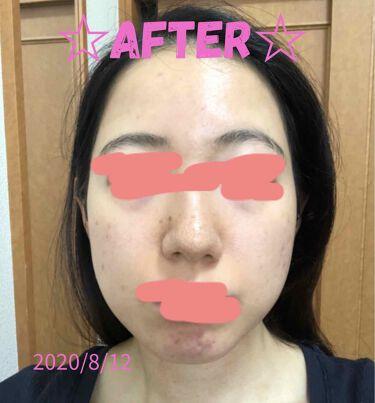 【画像付きクチコミ】こんばんは!2回目の投稿です✨最近、肌質が改善されてきたのが目に見えてわかってきました…!!10年間ニキビに悩んでいたのが嘘みたいです、、ましてや、2ヶ月前はかなり肌が汚かったなんて💦💦写真があったので恥を忍んで載せておきます…笑まだ...