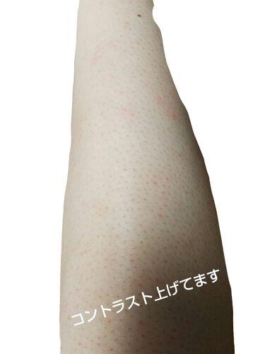 ケアノキュア(医薬品)/小林製薬/その他を使ったクチコミ(3枚目)