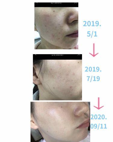 ヒドラソープ  パーム/モイスティーヌ/洗顔石鹸を使ったクチコミ(2枚目)