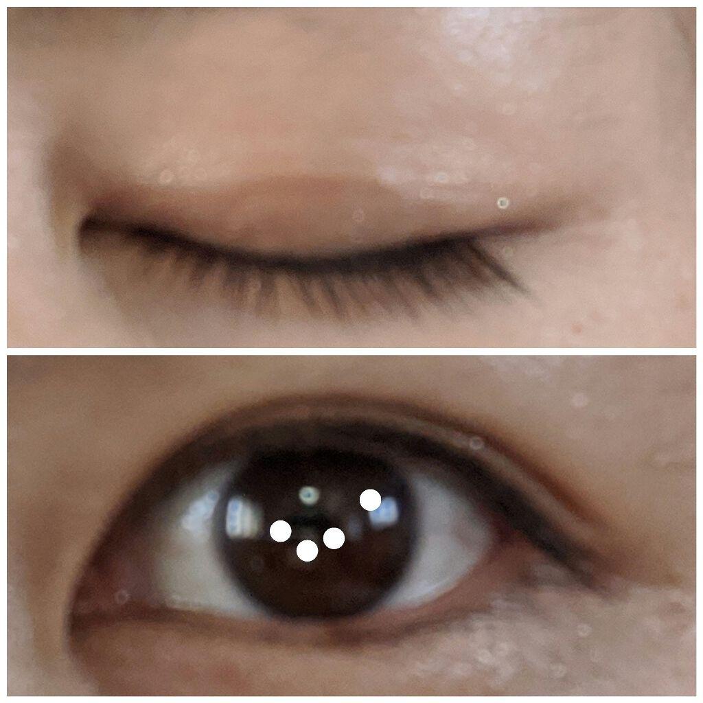 アイプチ 眼瞼 下垂