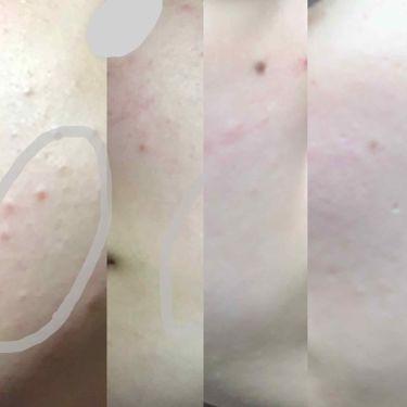セラミドスキンケア 薬用アクネVCローション/ETVOS/化粧水を使ったクチコミ(4枚目)