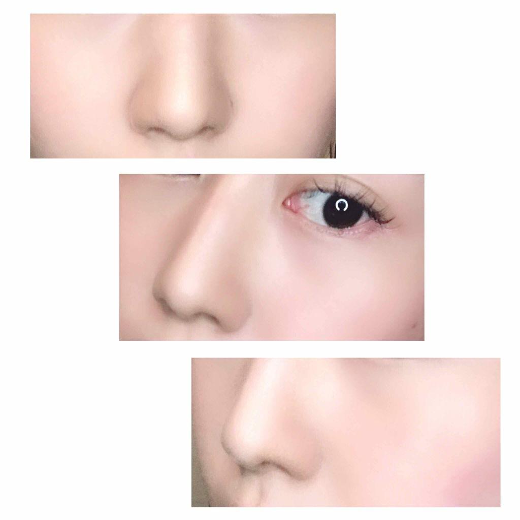 の 三角 鼻 穴