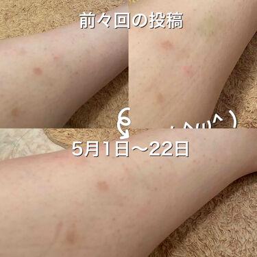 薬用しみ対策 美白化粧水/メンソレータム メラノCC/化粧水を使ったクチコミ(3枚目)