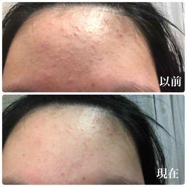 薬用クリーム洗顔/メンソレータム アクネス/洗顔フォームを使ったクチコミ(3枚目)