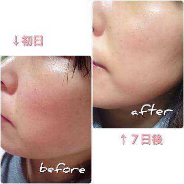 ミラクプロフェッショナル8315/その他/化粧水を使ったクチコミ(2枚目)