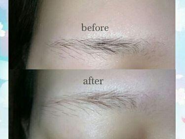 脱色クリームスピーディー/エピラット/脱毛・除毛を使ったクチコミ(3枚目)