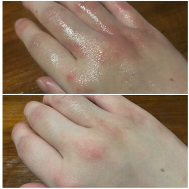 【画像付きクチコミ】まずはじめに※以下のケアは2日程、皮膚科でもらった処方薬と軟膏を塗って治癒してから行ってます過度な水仕事でヒリヒリと荒れた手。調べたところ《ロコベースロコベースリペアクリーム》を見つけましたドラッグストアで購入ハンドクリームコーナーの...