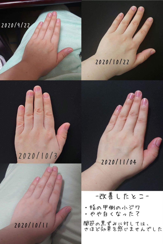 関節 指 黒ずみ の