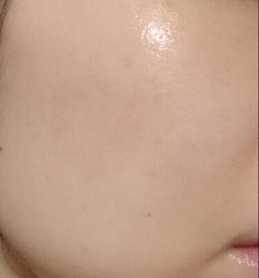 シミ対策美容液/アクアレーベル/美容液を使ったクチコミ(4枚目)