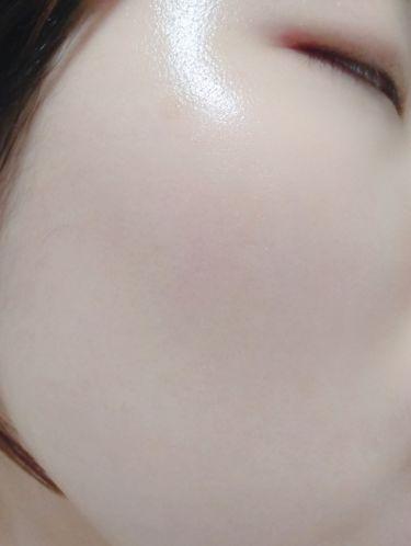 ピュアパワーエッセンス/youange/美容液を使ったクチコミ(1枚目)