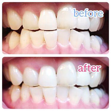 ORALUMINUS/mous./歯ブラシ・デンタルフロスを使ったクチコミ(9枚目)