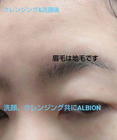 【画像付きクチコミ】三枚目以降肌写真注意!すっぴん加工無しなのでとくに😃💦おやすみだったので、じっくりスキンケアに勤しんでみましたよ😆最近乾燥でおでことか眉毛が、かゆくなってきたのもあり😭お肌をALBION攻めしてみました☺️これは、これでダメならスキン...