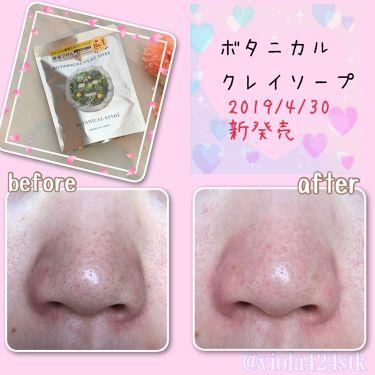 ボタニカルエステ ボタニカル クレイソープ/ステラシード/洗顔石鹸を使ったクチコミ(1枚目)