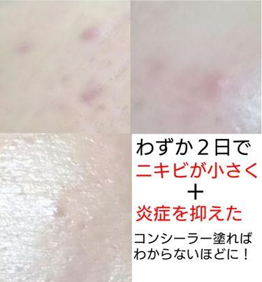 ニキビパッチ/その他スキンケアを使ったクチコミ(4枚目)