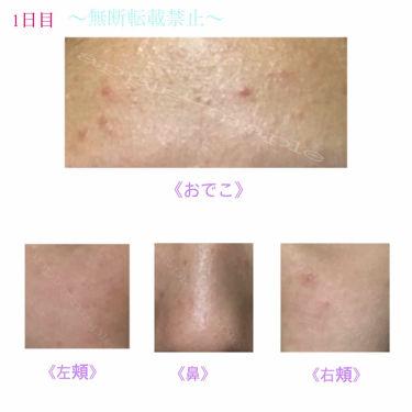 ロゼット 洗顔パスタ 荒性肌/ロゼット/洗顔フォームを使ったクチコミ(3枚目)