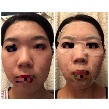 はとむぎ美肌マスク/はとむぎ本舗/シートマスク・パックを使ったクチコミ(2枚目)