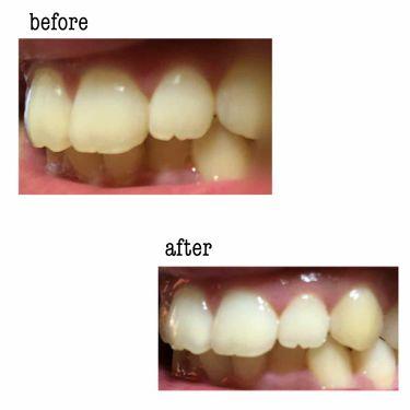 プレミアム ステインクリア ペースト/オーラツー/歯磨き粉を使ったクチコミ(2枚目)