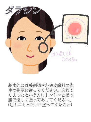 ダラシンTゲル 1%/佐藤製薬/その他スキンケアを使ったクチコミ(3枚目)