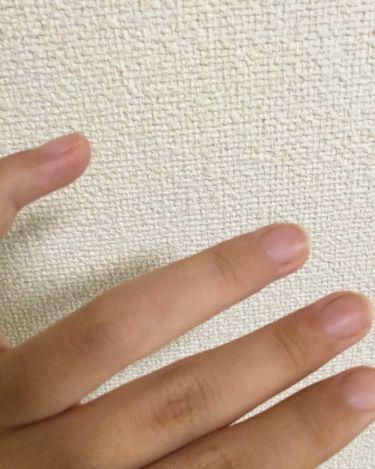 ケシミンクリーム f/ケシミン/その他スキンケアを使ったクチコミ(3枚目)