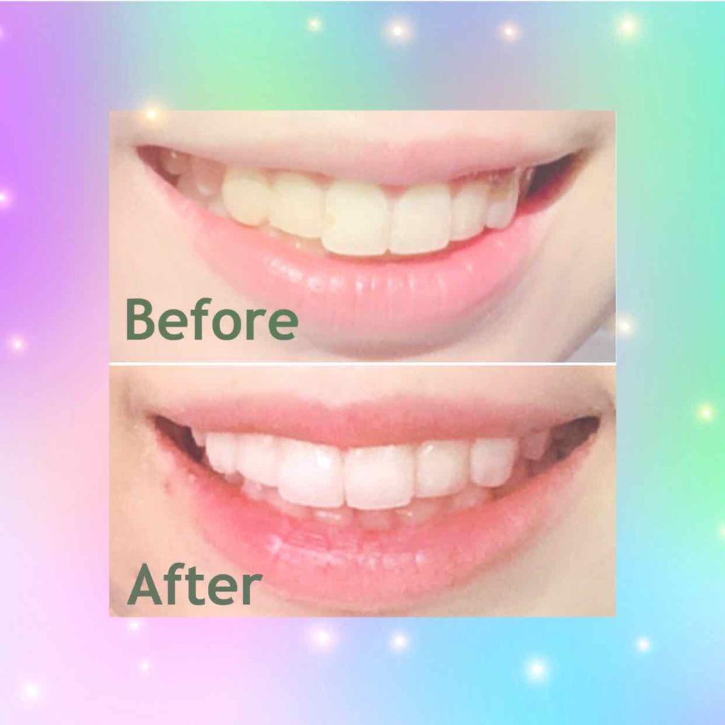 3d クレスト ホワイトニング テープ 歯を白くする「貼るテープ」の効果と怖いリスク!自宅で歯を白くする...