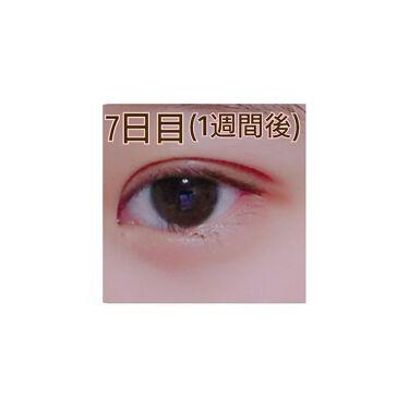 目 の 腫れ 直す