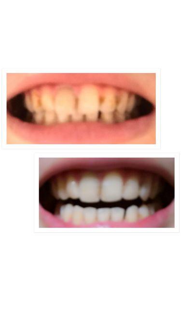 歯 を 白く する アプリ