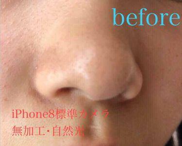 クレンジングフォーム ティーツリーケア/MEDIHEAL/洗顔フォームを使ったクチコミ(2枚目)