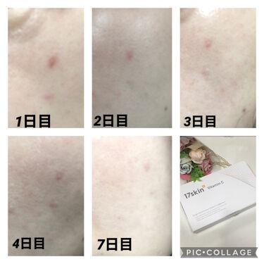 高濃度ビタミンC/17skin/美肌サプリメントを使ったクチコミ(4枚目)