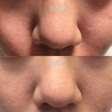雪肌粋 酵素洗顔パウダー/雪肌粋/洗顔パウダーを使ったクチコミ(2枚目)
