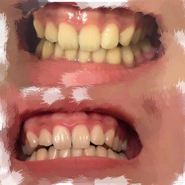 重曹つるつるハミガキ/歯磨撫子/歯磨き粉を使ったクチコミ(2枚目)