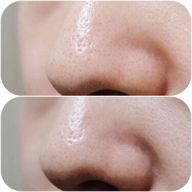 ガスール固形/ナイアード/洗顔フォームを使ったクチコミ(4枚目)