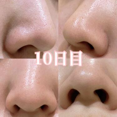 サヴォン ド マルセイユ オリーブ石鹸/ル セライユ/洗顔石鹸を使ったクチコミ(4枚目)