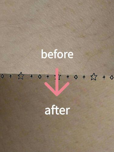 薬用ヘアリムーバルクリーム/ミュゼコスメ/脱毛・除毛を使ったクチコミ(4枚目)