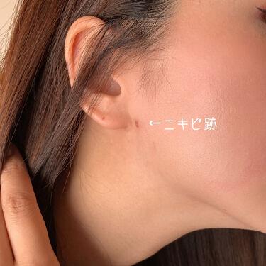 あこ❀ on LIPS 「17skin高濃度ビタミンC(2000mg配合)美容皮膚科医院..」(4枚目)