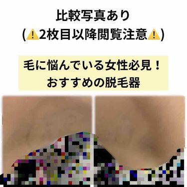 シルクエキスパート/ブラウン/ボディケア美容家電を使ったクチコミ(1枚目)