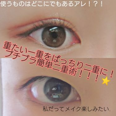 絆創膏/ザ・ダイソー/その他を使ったクチコミ(1枚目)