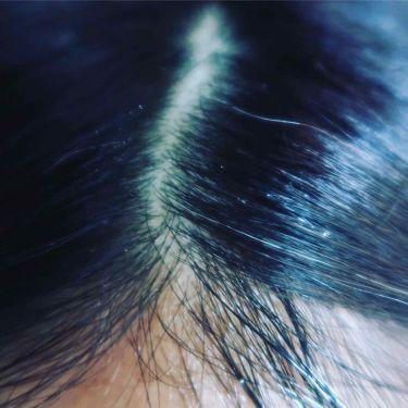 薬用 地肌 エッセンス/ラサーナ/頭皮ケアを使ったクチコミ(3枚目)