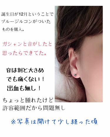 ピナック ピアッサー/その他を使ったクチコミ(2枚目)