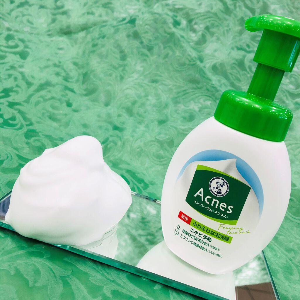 【シリーズ累計8800万本突破!*】アクネス薬用泡洗顔でニキビ予防&つるっとお肌を目指そう!(2枚目)