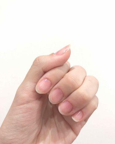爪強化ベースコート/DAISO/ネイルトップコート・ベースコートを使ったクチコミ(2枚目)