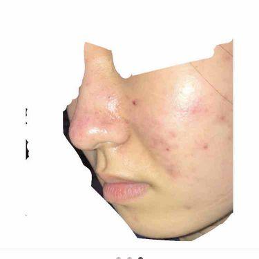 A アクネソープ/NOV/洗顔石鹸を使ったクチコミ(3枚目)