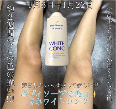 薬用ホワイトコンク ボディシャンプーC II/ホワイトコンク/ボディソープを使ったクチコミ(1枚目)