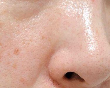 スーパー毛穴ローション/ラボラボ/化粧水を使ったクチコミ(4枚目)
