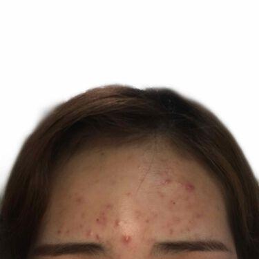 スキンピールバー ティートゥリー/サンソリット/洗顔石鹸を使ったクチコミ(2枚目)