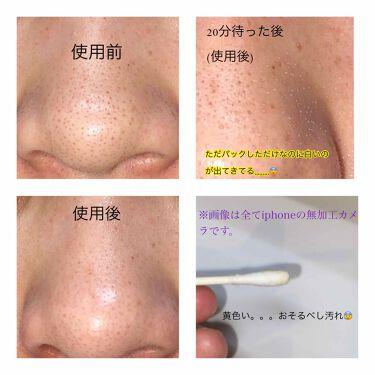 P.Z. SSOC SSOC NO MORE BLACKHEAD/One-day's you/化粧水を使ったクチコミ(2枚目)