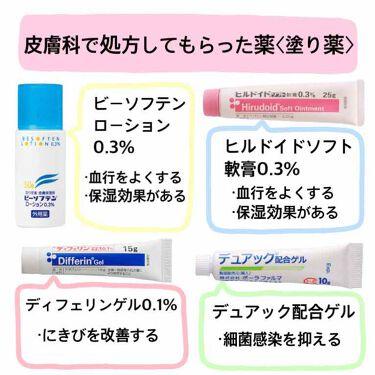 ビーソフテン ローション/持田製薬株式会社/その他スキンケアを使ったクチコミ(3枚目)