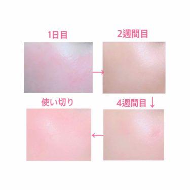セラムラフェルミサンS/クレ・ド・ポー ボーテ/美容液を使ったクチコミ(4枚目)