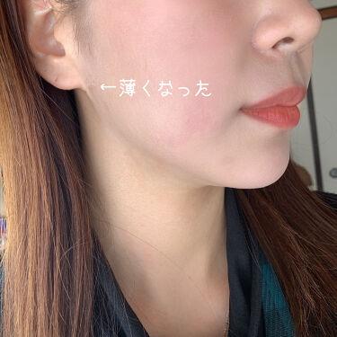 あこ❀ on LIPS 「17skin高濃度ビタミンC(2000mg配合)美容皮膚科医院..」(5枚目)